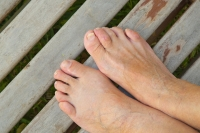 An Overview of Hammertoe